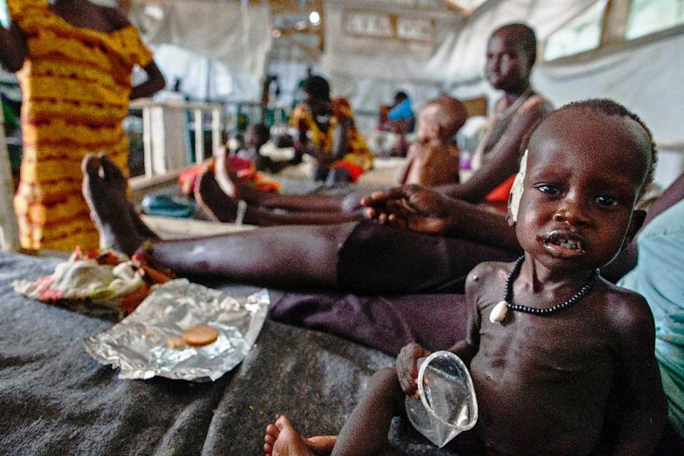A child with severe malnutrition receives treatment at a clinic in Lankien, South Sudan, on April 8, 2016 (AFP Photo/Albert Gonzalez Farran )