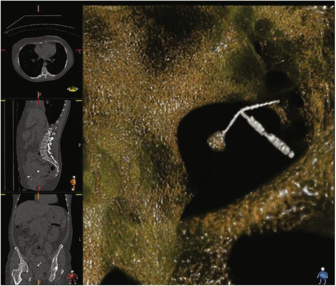 A CT scan shows a T-shaped intrauterine contraceptive copper-bearing device perforating a woman's posterior bladder.
