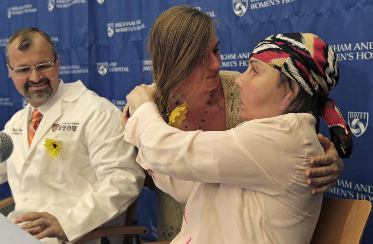 Carmen Blandin Tarleton of Thetford, Vermont, right, is embraced by Marinda Righter, daughter of face donor Cheryl Denelli-Righter, at Brigham and Women's Hospital in Boston, Mass., Wednesday, May 1, 2013. The 44-year-old mother of two underwent the transplant in February after a 2007 attack in which her estranged husband doused her with industrial strength lye, burning more than 80 percent of her body. At left is her surgeon, Dr. Bohdan Pomahac. (AP Photo/Charles Krupa)