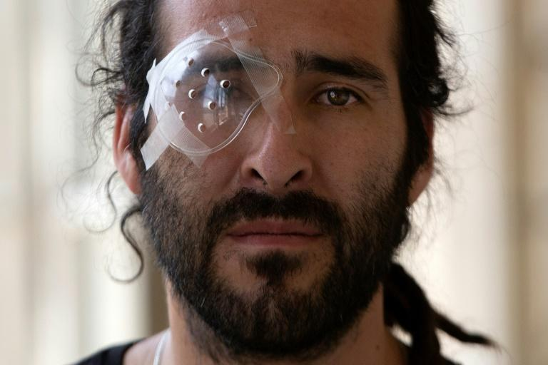 Builder and musician Cesar Callozo was hit in the eye during a demo in central Santiago
