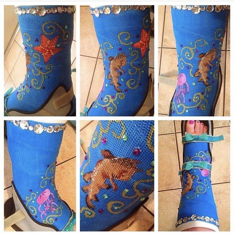 Katie's cast art with rhinestones and sharks.