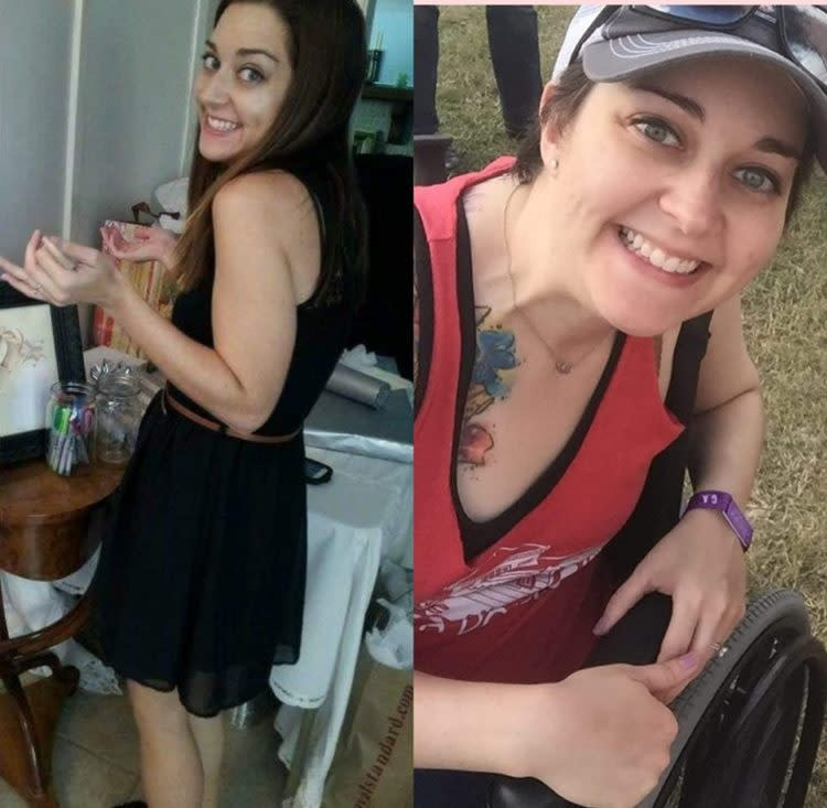 woman's before and after photo standing then sitting