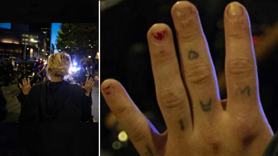 Two photos show a woman with her hands up and a close up of her hand with a distinctive tattoo visible.