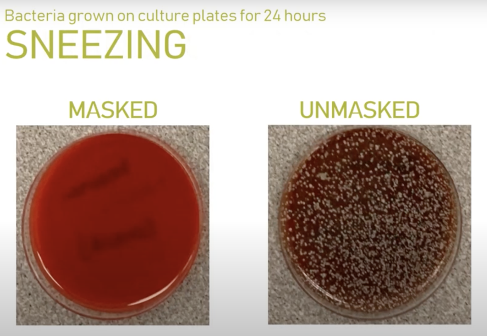 An unmasked sneezer left a huge spray of bacteria while the masked sneezer barely left a trace. Source: Microbiology Lab at Providence Sacred Heart Medical Center & Children's Hospital