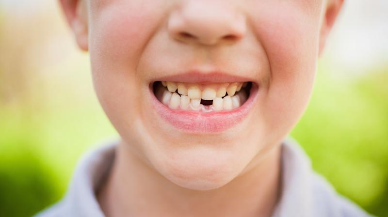 Tooth Fairy Schools Boy On His 'Dreadful' Brushing In Hilarious Letter