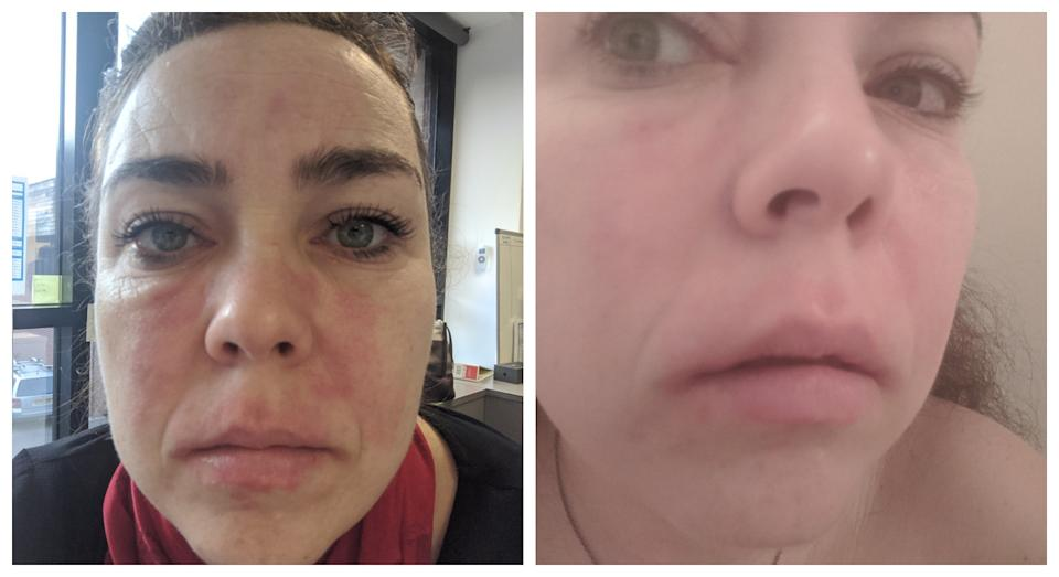 Smith's skin before and after (PA)