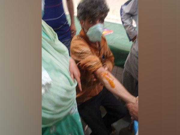 An injured civilian in the grenade attack (Photo/ANI)
