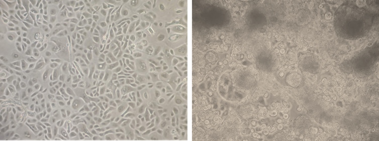 Healthy human lung cells (left) compared to virus-infected cells.
