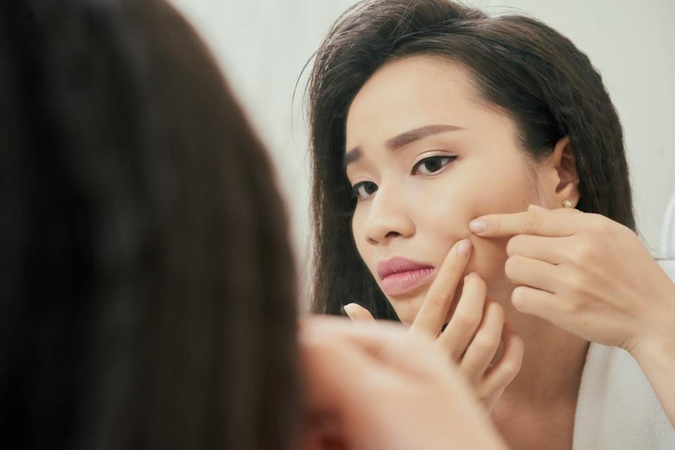 """<p>We've all done it, but dermatologists always recommend you don't take matters into your own hands and pop a zit. </p> <p>""""This is especially harmful if you are attempting to<a href=""""https://www.popsugar.com/beauty/pimple-life-cycle-stages-47489839"""" class=""""link rapid-noclick-resp"""" rel=""""nofollow noopener"""" target=""""_blank"""" data-ylk=""""slk:pop cysts (comedones)""""> pop cysts (comedones)</a> that are below the skin and cannot 'come to a head' through manual squeezing,"""" Lucy Chen, MD, board-certified dermatologist at <a href=""""www.riverchasedermatology.com"""" class=""""link rapid-noclick-resp"""" data-ylk=""""slk:Riverchase Dermatology"""">Riverchase Dermatology</a> in Miami, told POPSUGAR. Not only is squeezing at an unpoppable pimple painful but you can cause even more unnecessary damage to your skin. </p> <p>""""Squeezing can push bacteria and pus deeper into the skin, which can result in trauma to the skin such as piercing the skin (if someone is using an at-home lancer), redness, or swelling,"""" she said. """"Squeezing also can lead to scabs, which can leave you with acne pockmarks or scars.""""</p> <p>Instead, cystic pimples that are deep under the skin need to be treated by a dermatologist. They can properly lance the zit or inject it with a cortisone shot to help bring down the inflammation.</p>"""