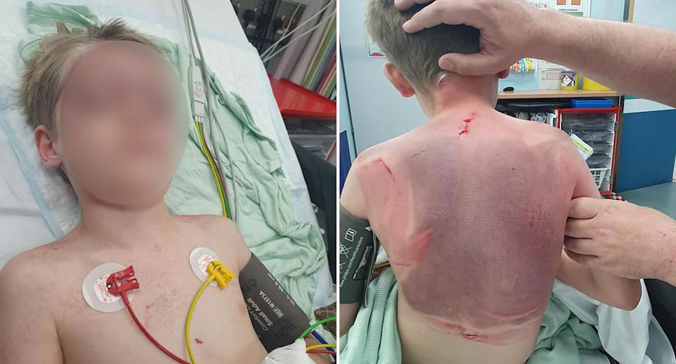 A young boy was sucked in by the filter on a hot tub. Source: Facebook/Alex Williams