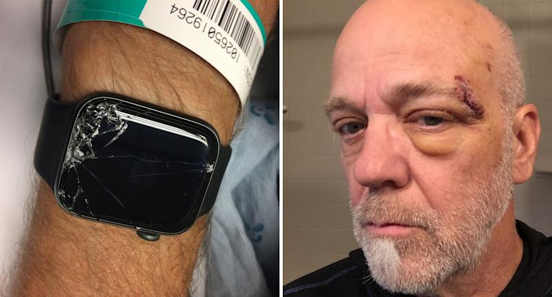 Bob Burdett's smashed Apple Watch after he fell while mountain biking. The Washington man is seen with an injury on his face.