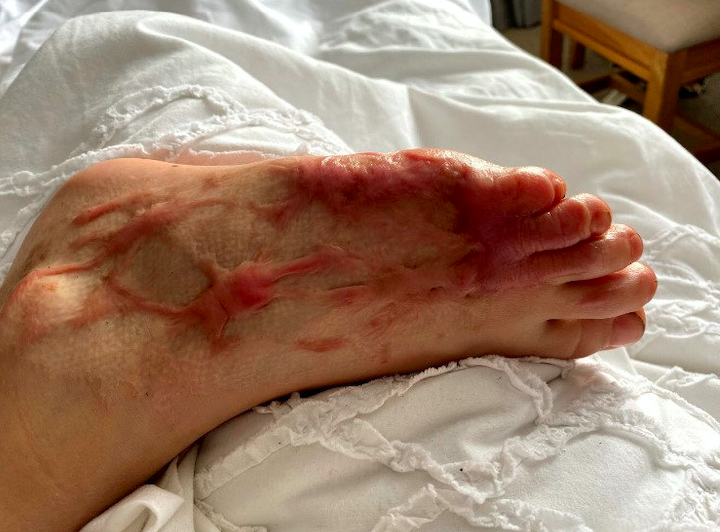 Will Tyler's foot 'melted like wax' after he stood on sand where a barbecue had been lit. (SWNS)