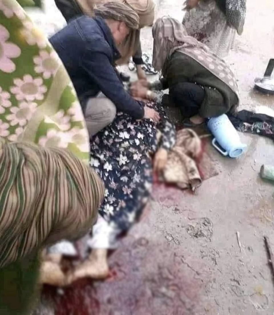 A woman is seen lying in blood in an Afghanistan street. It is believed she was shot by the Taliban for not wearing a burqa. Source: Twitter