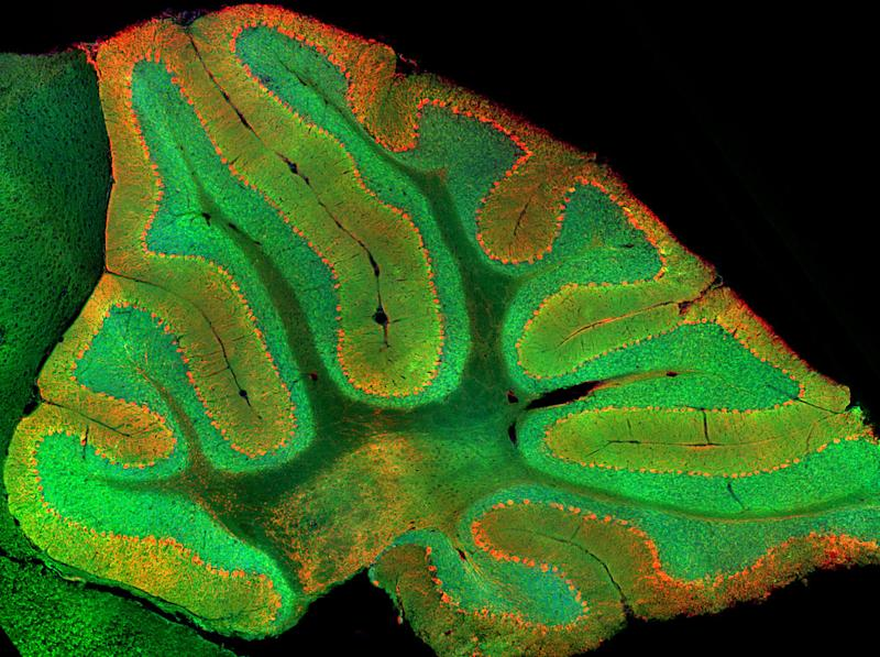 Scientists Identify Cerebellum's Previously Unknown Role