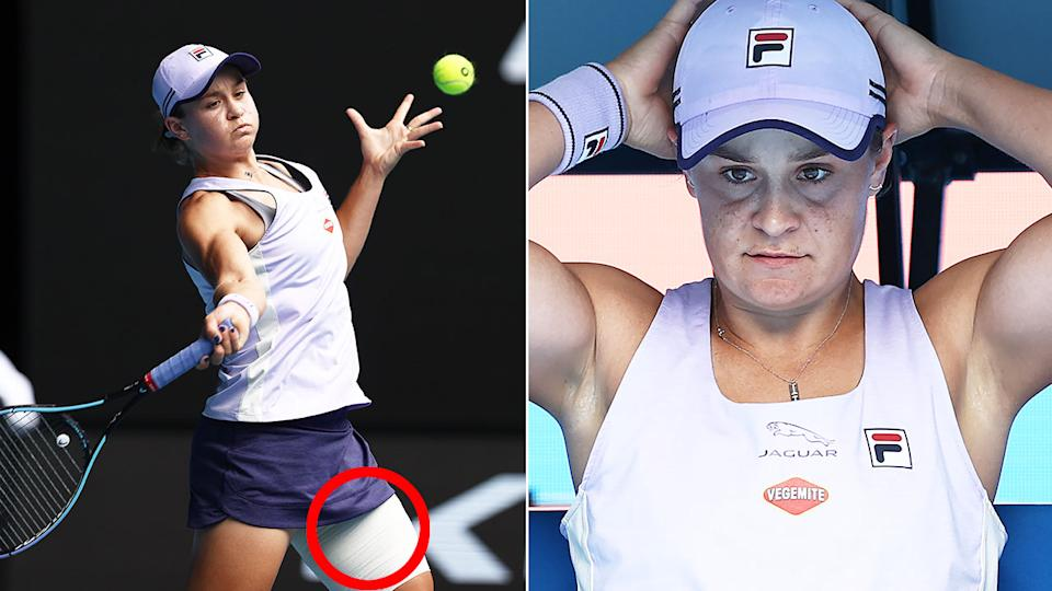 Seen here, Ash Barty's left leg was heavily taped during her second round win at the Australian Open.