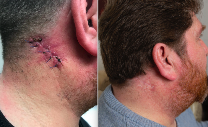 Mr Clegg says he has lost 80% of the movement in his neck following the accident in 2016 (SWNS)