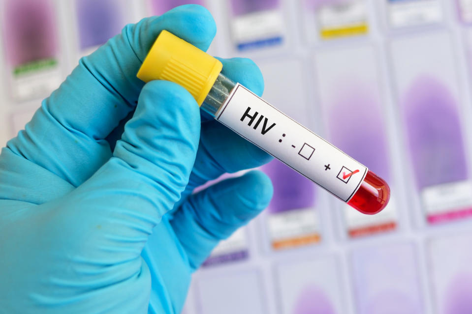 Blood sample positive with HIV test