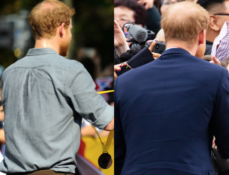 A leading hair loss expert has said Prince Harry's hair loss has exacerbated over the last year [Photo: Rex/Shuttershock]