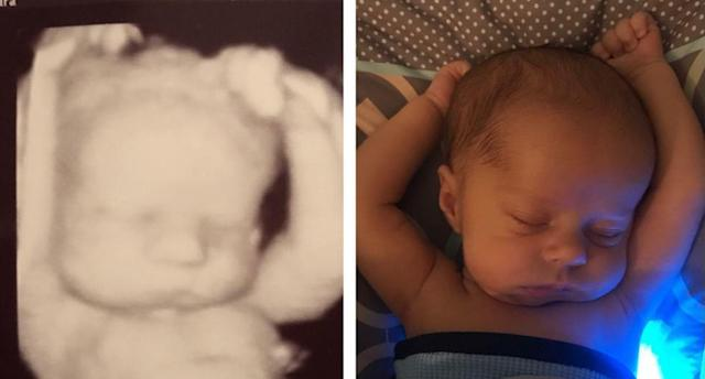 On the left, Michael with three weeks left in his mom's womb. On the right, he's 3 weeks old. (Photo: reddit.com)