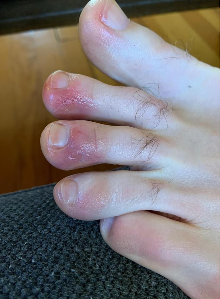 In April, a man who suffered from COVID toes shared this image with TODAY. (Courtesy of an anonymous patient)