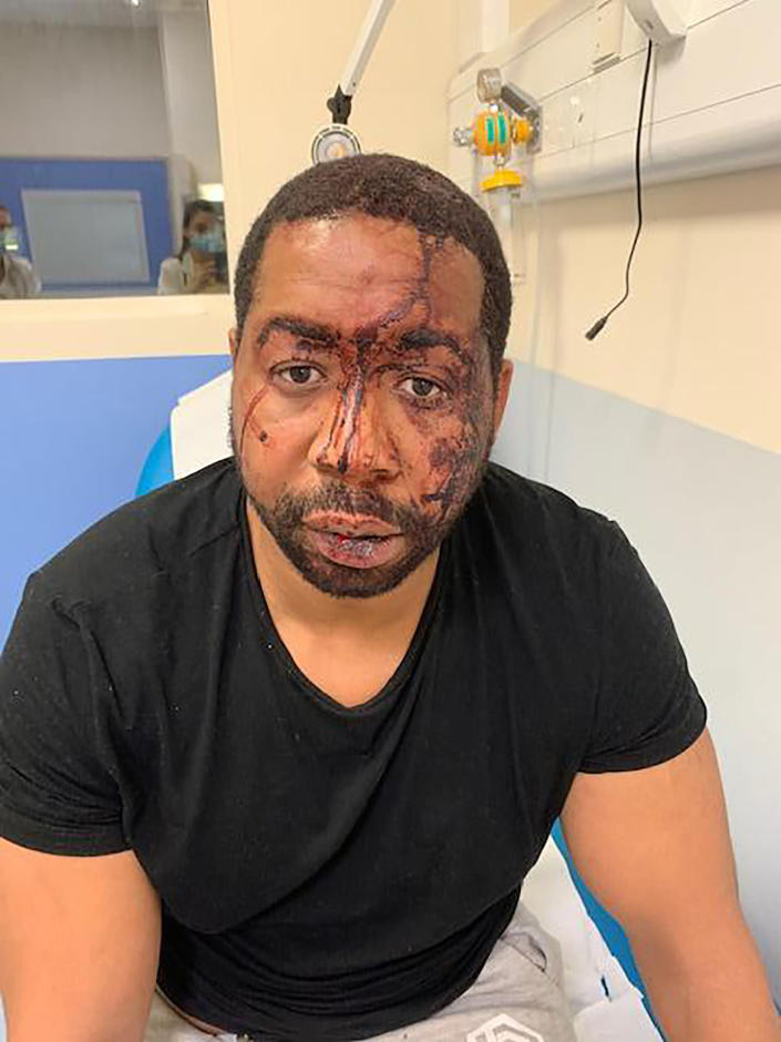 In this photo provided by Mazava music production shows Michel, no family name given, Saturday Nov.21, 2020 in Paris . French Interior Minister Gerald Darmanin ordered several Paris police officers suspended after the publication of videos showing them beating up a Black man and using tear gas against him with no apparent reason. (Courtesy of Hafida el Ali Via AP)