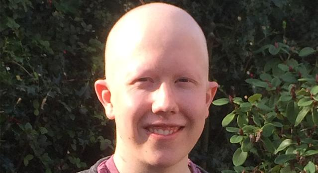 Callum Boyd lost his hair following six months of chemotherapy. (Supplied)