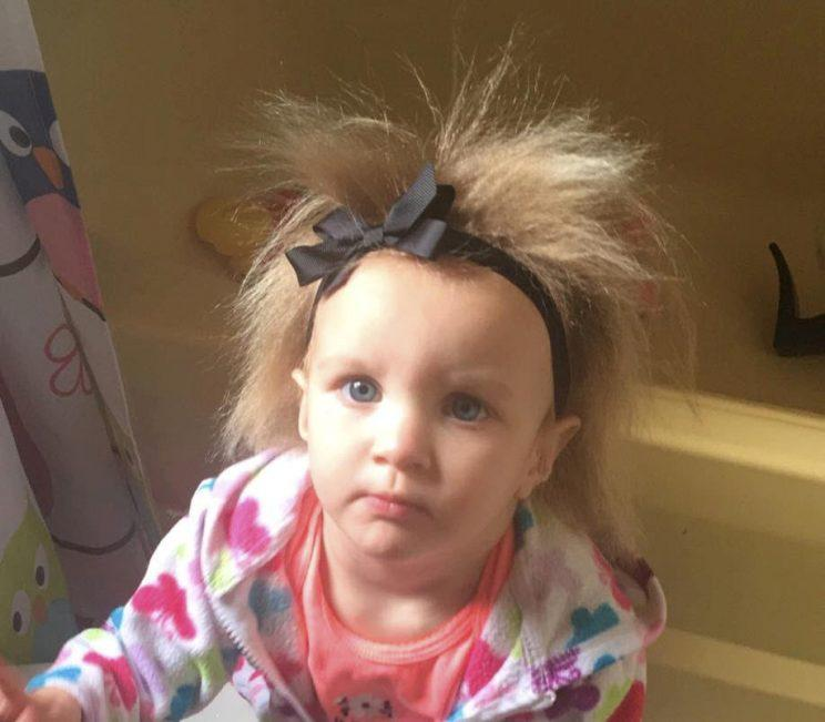 Phoebe Braswell has a condition called Uncombable Hair Syndrome which means she has permanent bedhead [Photo: SWNS]