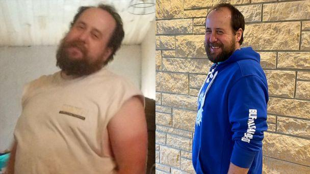 PHOTO: Sean Kelley decided to be his son's living donor and lost 40 pounds to help save his son's life. (UPMC | Sean Kelley)