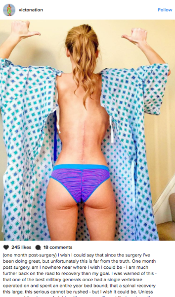 Victoria Graham, 22, is a beauty queen in Maryland, who is sharing her surgery scars with the world to raise awareness for Ehlers-Danlos syndrome.