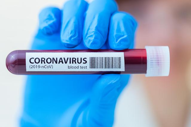 Coronavirus antibody tests may not be as 'game changing' as Boris Johnson claimed. (Getty Images)