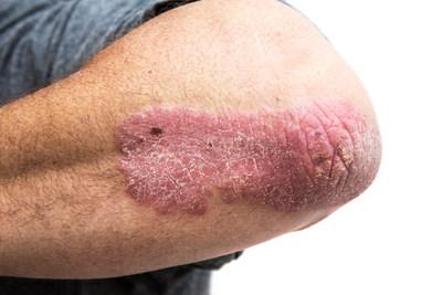 A case of moderate psoriasis shown on patient (CNW Group/AbbVie)