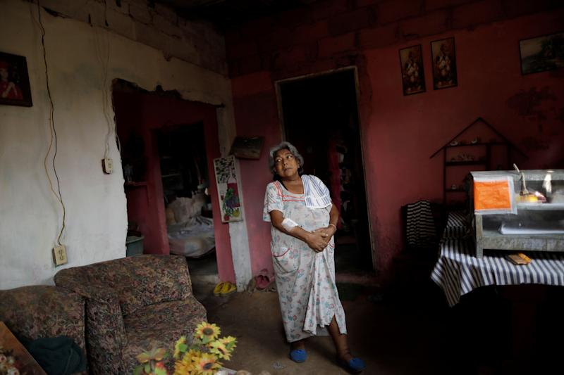 Lesbia Avila de Molina, 53, a kidney disease patient, holds her stomach due to pain, in her house during a blackout in Maracaibo, Venezuela. (Photo: Ueslei Marcelino/Reuters)