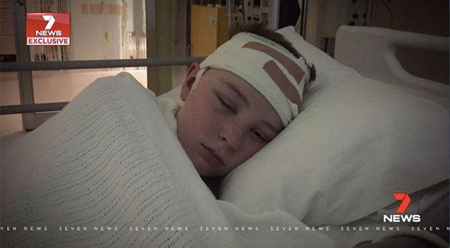 Sam Seric is lucky to be alive, after a bump on the head in a skateboard fall almost cost him his life. Source: 7 News