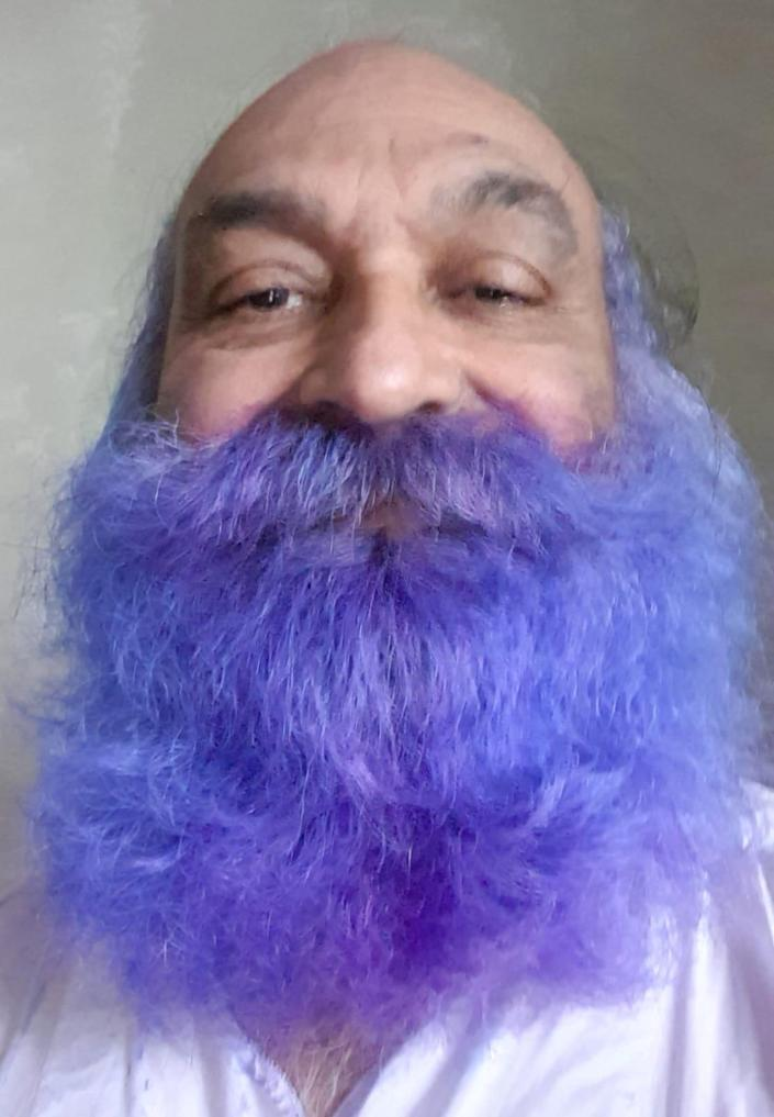 "Dr Manoj Joshi, before his shave. See SWNS story SWLEmoustache; A man who shaved his moustache to raise funds for a polio vaccine says his wife can't even recognise him - after he trimmed it for the first time in 52 YEARS. Dr Manoj Joshi, 68, says he had never shaved his moustache ever since he could grow one as a fresh faced 16-year-old but decided to chop it all off in a bid to ""eradicate polio"". But after he chopped it off his shocked wife said she couldn't recognise him as she'd never seen him without it in the 42 years they had been married. The grandfather-of-two joked that it would take a lawn mower to trim his luscious facial hair - which is older than the invention of the mobile phone. Dr Joshi, a proud Rotarian, which is a worldwide charitable society with over a million members worldwide, has been involved in what he calls ""acts of giving"" for his entire life. On World Polio Day (Saturday, Oct 24) he took centre stage at a park in front of Bradford City Hall to shave off his beloved moustache in an ""emotional day""."