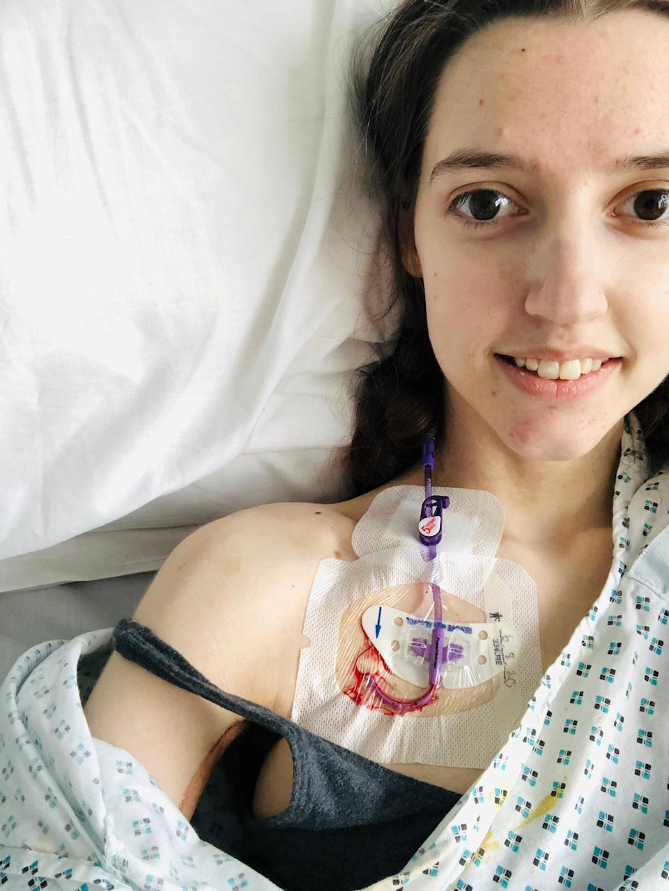 The 20-year-old is now fed through her heart. (Image supplied SWNS)