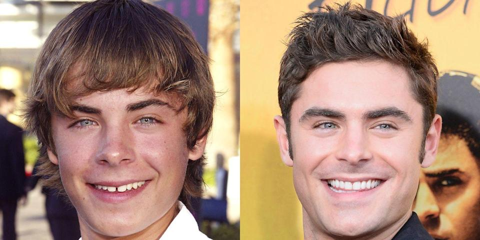 """<p>""""To close the gap between his front teeth, it appears he may have used braces, bleaching, and a small amount of bonding. He now has a more masculine smile that suits his strong facial features.""""</p><p><em>Shop similar: Supersmile Professional Whitening System</em><em>, $36</em></p><p><a class=""""link rapid-noclick-resp"""" href=""""https://go.redirectingat.com?id=74968X1596630&url=http%3A%2F%2Fwww.ulta.com%2Fprofessional-whitening-system%3FproductId%3Dprod2106513&sref=https%3A%2F%2Fwww.menshealth.com%2Fentertainment%2Fg33929877%2Fcelebrity-smiles-before-and-afters%2F"""" rel=""""nofollow noopener"""" target=""""_blank"""" data-ylk=""""slk:BUY IT"""">BUY IT</a><br></p>"""