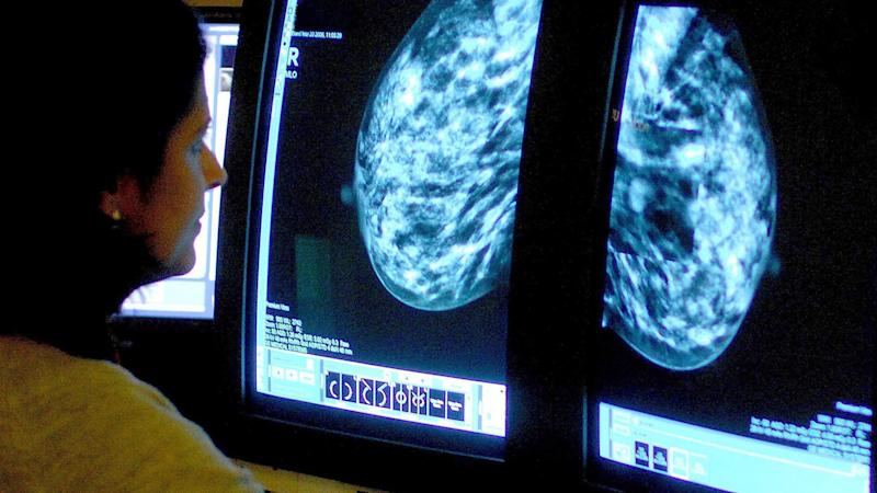 A breast cancer doctor has said some women don't display any symptoms at all.