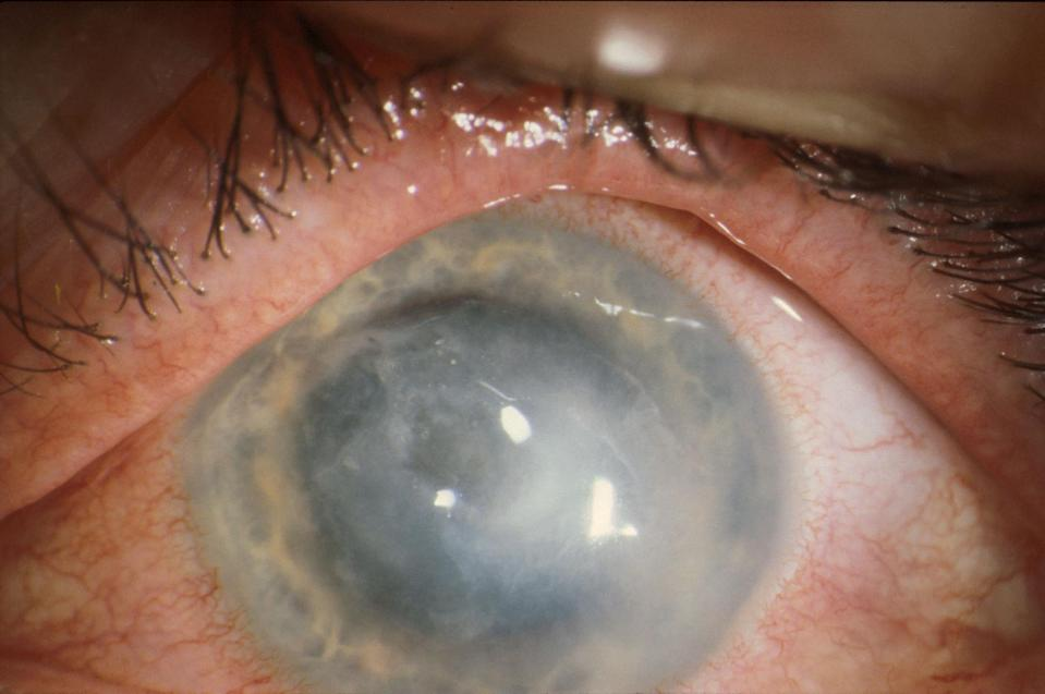 The infection is caused by a cyst-forming microorganism