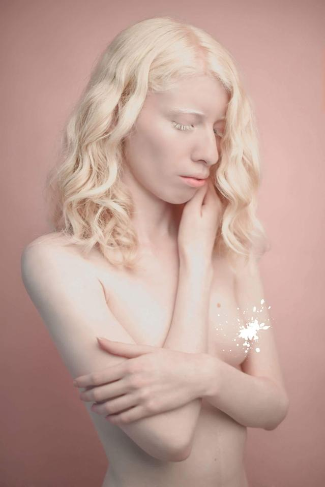 Mexican model Ruby Vizcarra is empowering other albinos to love being different. (Photo: Courtesy of Ruby Vizcarra)