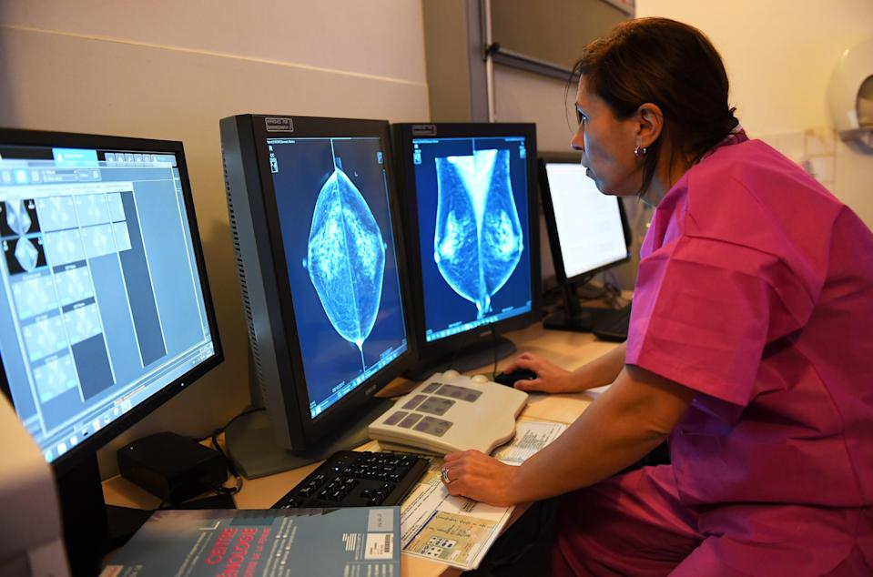 <p>Until now, the drug olaparib has only been used in the treatment of advanced cancers</p> (AFP/Getty)
