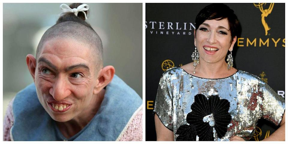<p>Naomi Grossman does an incredible job playing Pepper, a woman with microcephaly, on <em>American Horror Story</em>. Grossman, who does not have this medical condition in reality, is another celebrity who must spend hours in the makeup chair to achieve this look. </p>