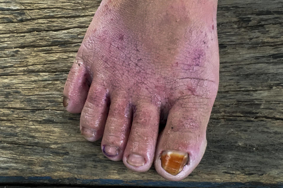 A woman who sprays pesticides in a palm oil plantation displays the raw, irritated skin on her foot and damaged toenails she blames on the chemicals, in Sumatra, Indonesia, Saturday, Sep. 16, 2017. Many female workers spray toxic chemicals, including some banned in many countries, and spread fertilizers without wearing any protective gear. (AP Photo/Margie Mason)