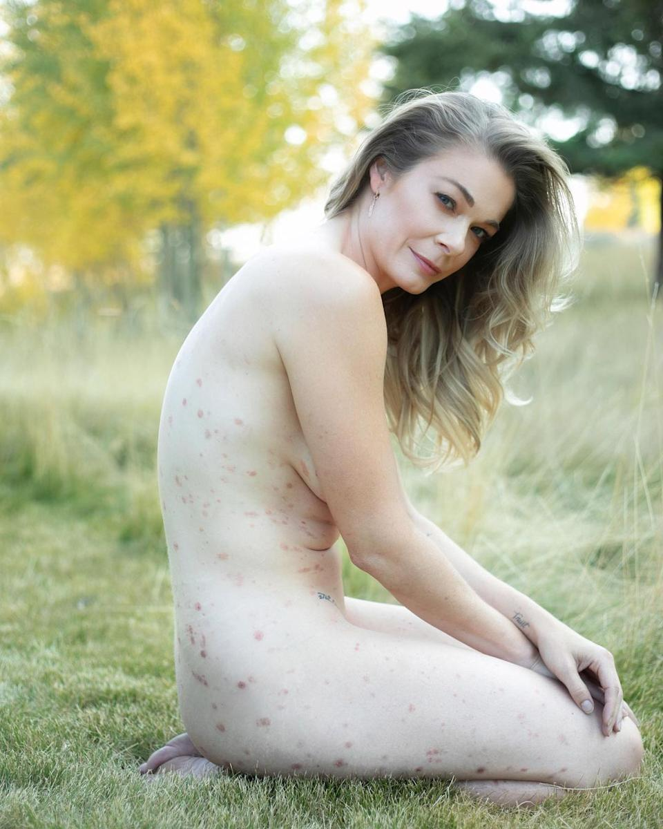 Singer LeAnn Rimes has gone completely nude to show off the extent of her painful skin disease, psoriasis. Photo: Instagram/leannrimes.
