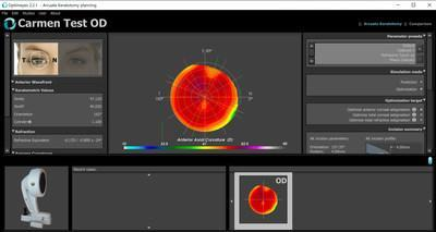 Optimeyes interface for ophthalmologists with Ansys Mechanical embedded