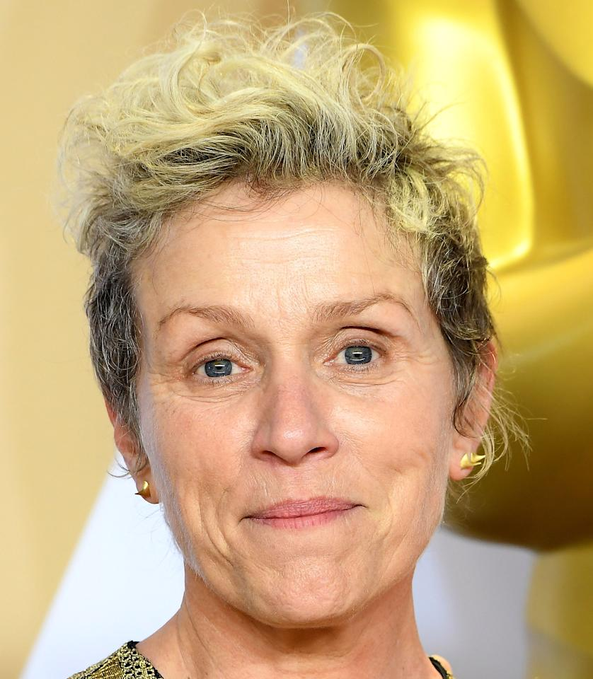 <p>Most women – and a fair share of men – would cake themselves in make-up when attending the Oscars. But Frances McDormand accepted her best actress accolade without an inch of cover-up on her face. And she looked fabulous. <em>[Photo: Getty]</em> </p>