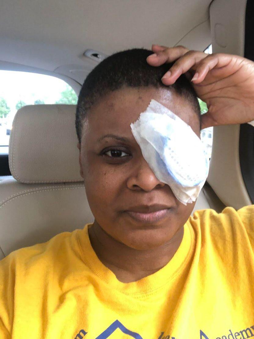 The author immediately following cataract surgery on Sept. 3, 2020. She developed a dense cataract following her COVID-19 infection. (Photo: Courtesy of Chimére L. Smith)