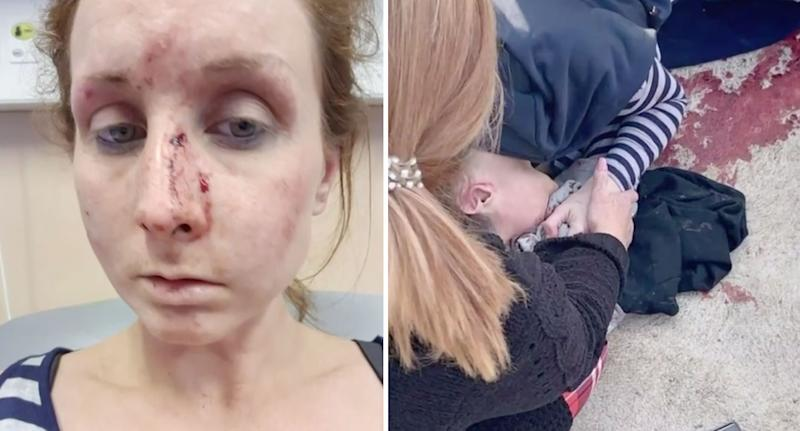Amy Vaughn shown after allegedly being attacked by high school students. Source: Facebook/A Current Affair