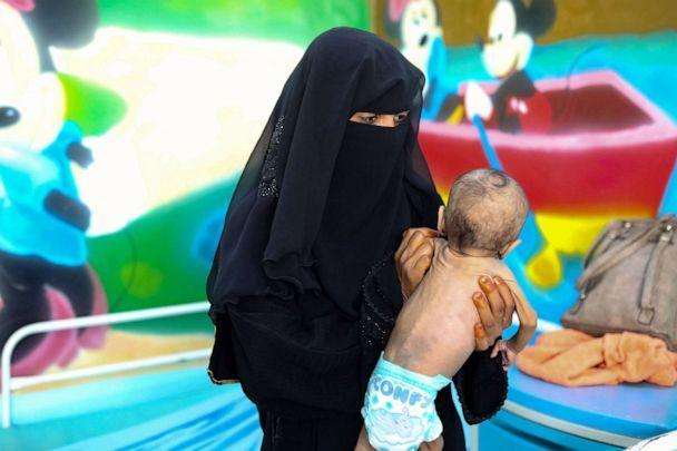 PHOTO: A Yemeni mother carries a child suffering from malnutrition during his treatment at a treatment centre in Taez, Yemen, Oct. 28, 2020. (Ahmad Al-basha/AFP via Getty Images, FILE)