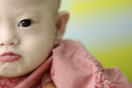 Gammy, a baby born with Down's Syndrome, is held by his surrogate mother in Chonburi province