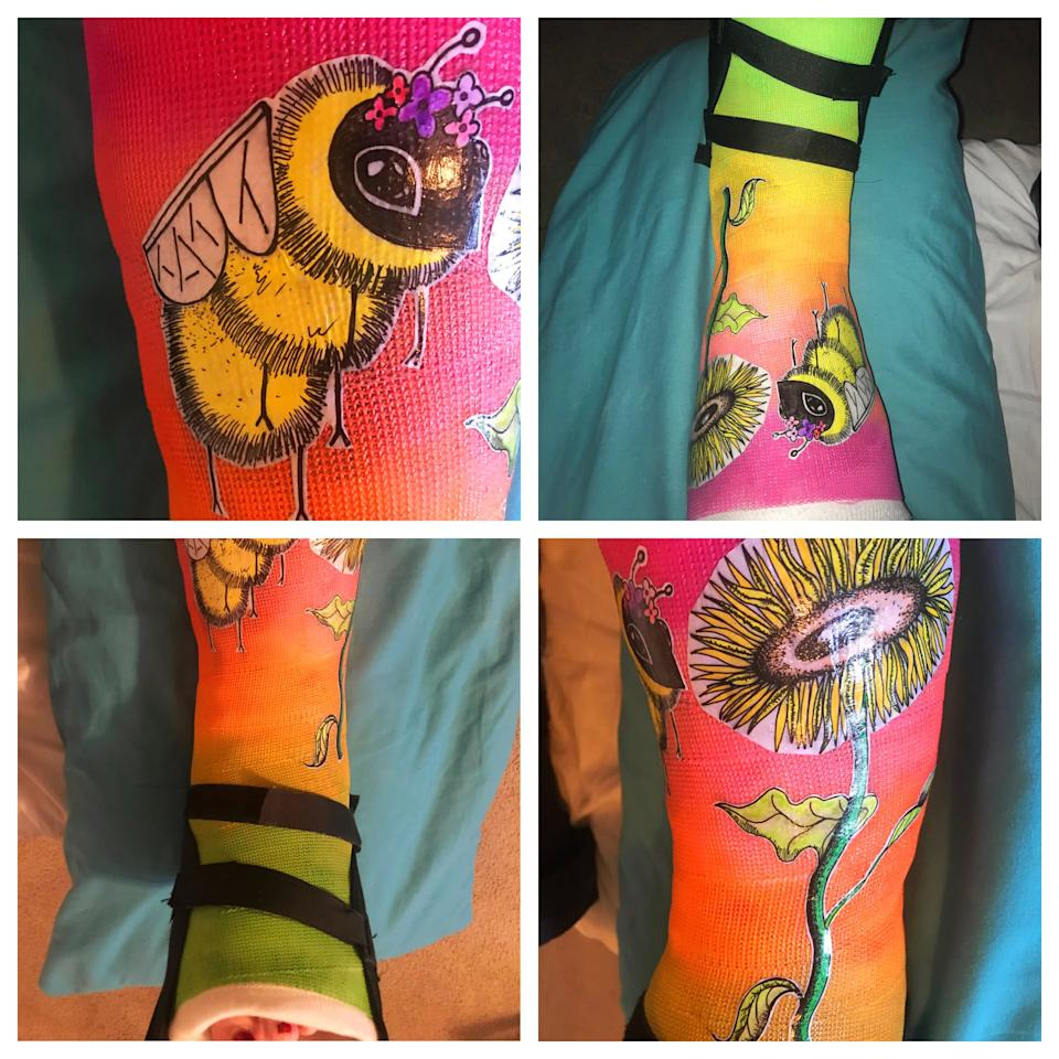 Cast decorated with flower and bumblebee.